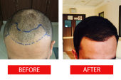Tips For Hair Transplant Procedures in Singapore